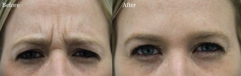 3-Botox B&A Dr. Hevia W