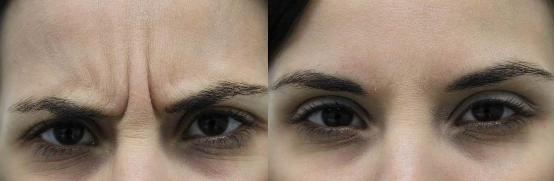 4-Botox B&A Dr. Hevia W