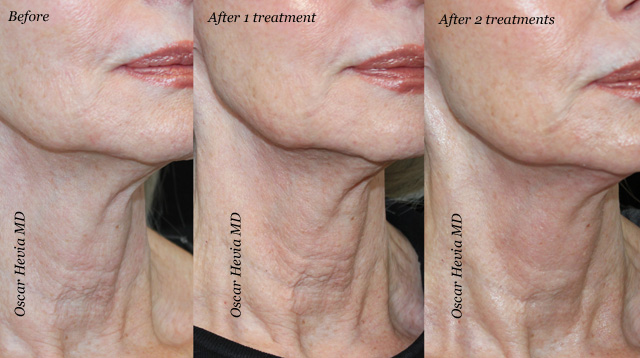 Infini results by Dr. Hevia