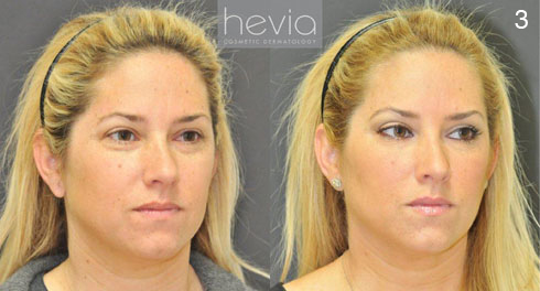 Before And After Photos Of Restylane For Under Eyes