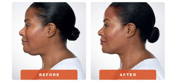 kybella-brookyn-before-after-56