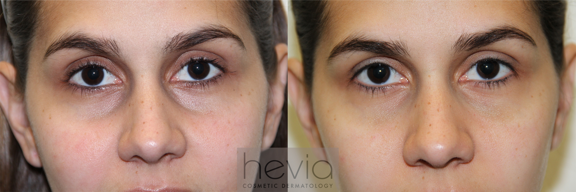 Undereye Correction Female before and after