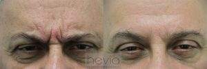 1Botox Male before and after