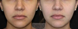 Laser Treatment Brown spots before and after