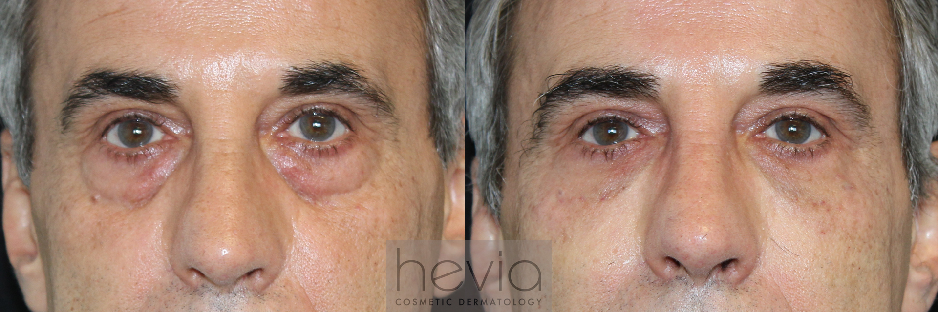Undereye Correction Male before and after