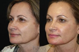 Bellafill Liquid Facelift Female before and after