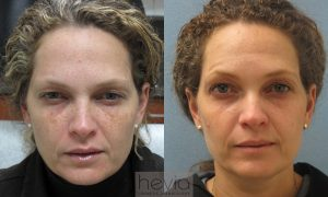 Laser and Obagi Treatment Brown spots before and after