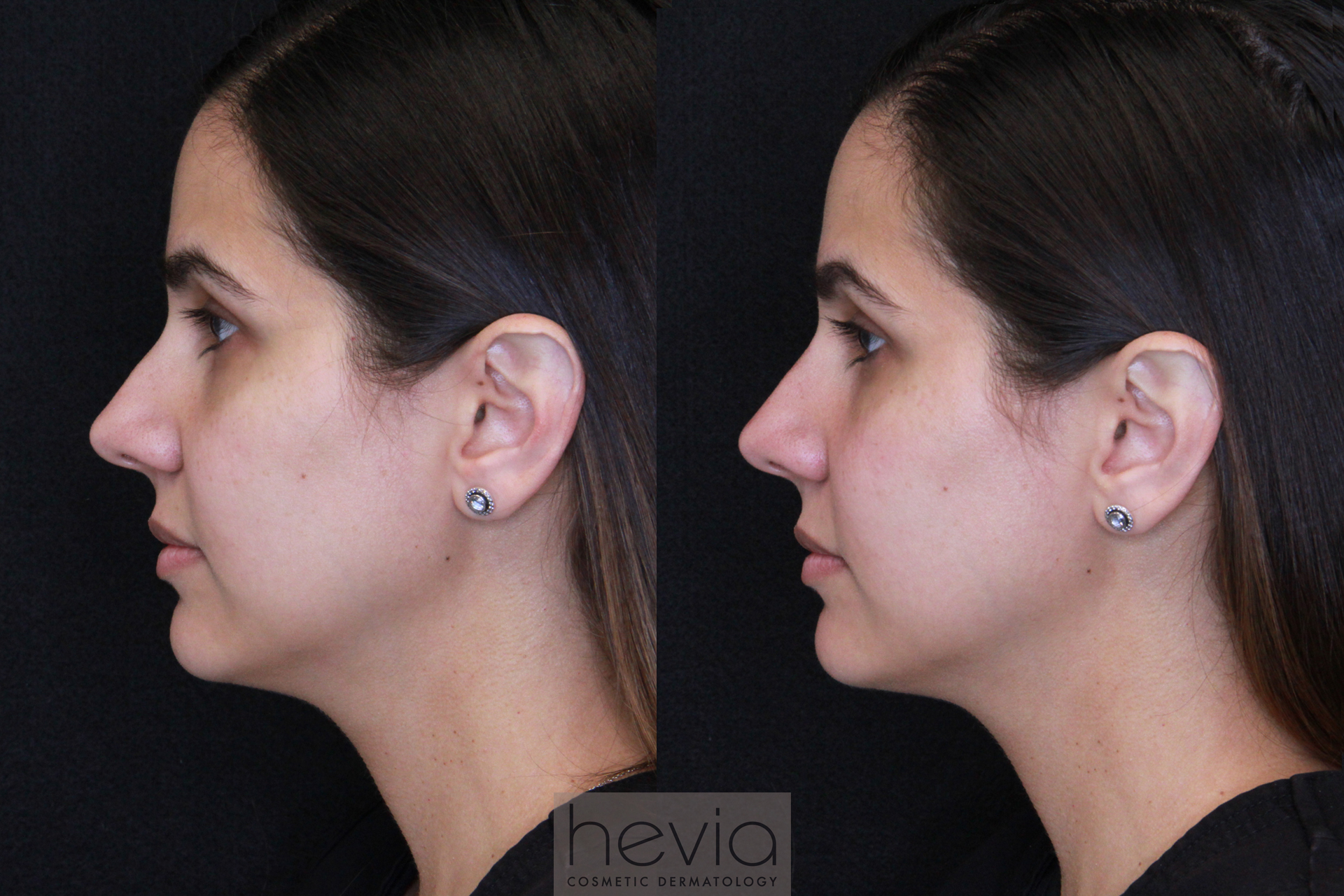 Nasal bump correction with filler before and after
