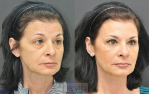 RadiesseRestylaneLiquid Facelift Female before and after