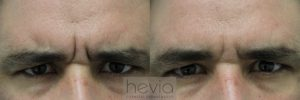 3Botox Male before and after
