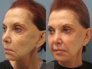 RestylaneLiquid Facelift Female