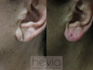 Ear lobe rejuvenation Radiesse