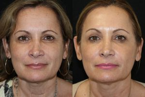 51 year old female filler and botox before and after