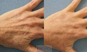 Hand Rejuvenation with Radiesse filler