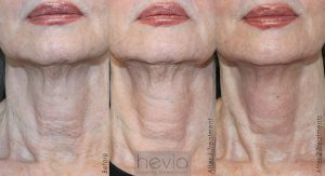 Infini Neck Results after 2 treatments