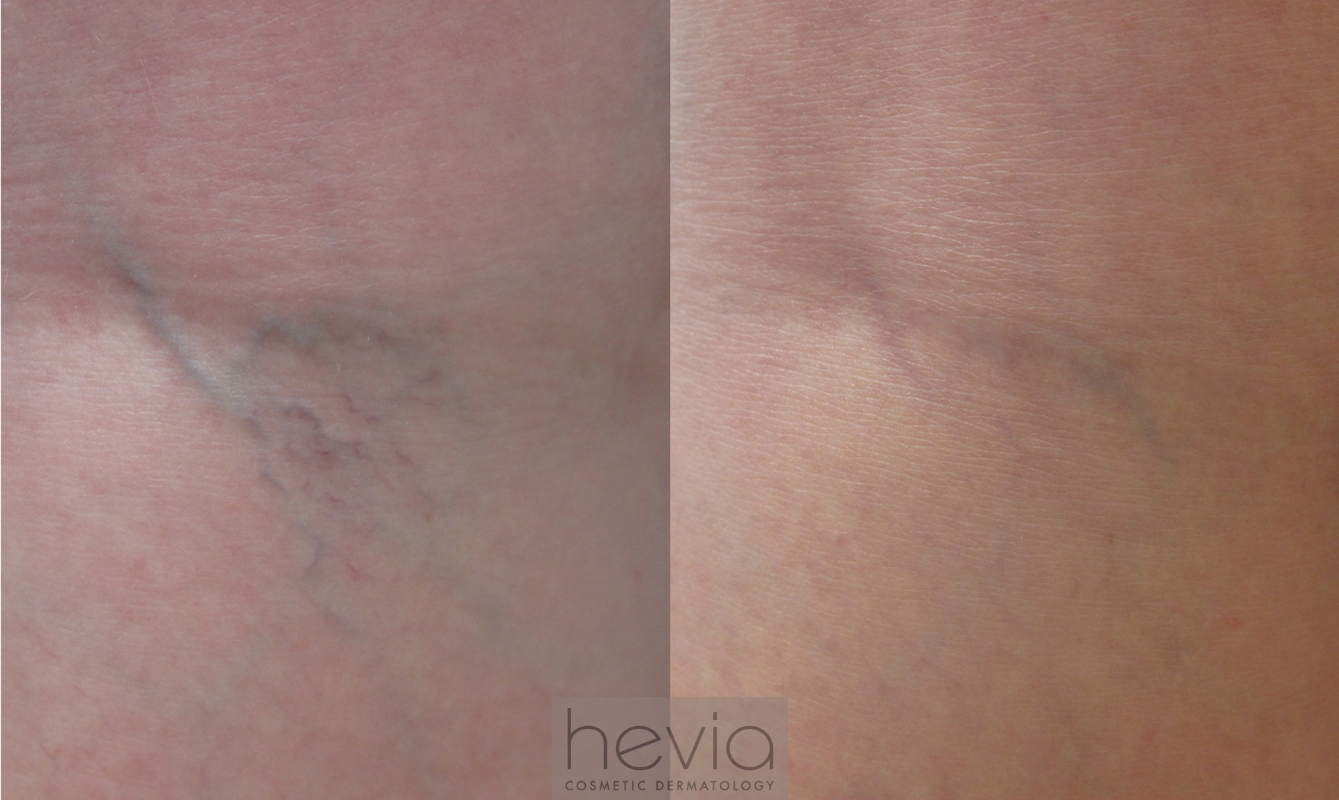 Leg vein sclerotherapy before and after