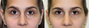 Female under eye filler before and after