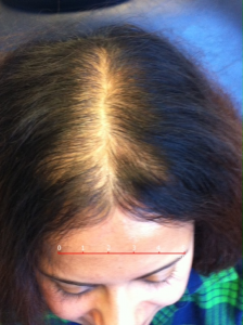 woman with moderate hair thinning