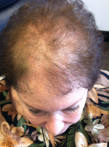 woman with severe thinning