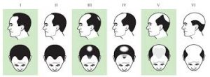 male balding types