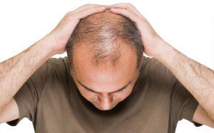 male pattern balding thinning